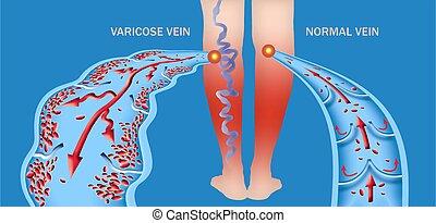 varicose, legs., struktur, geäder, normal, weibliche , veins., älter