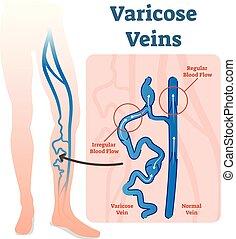 vektor, fließen, blut, diagramm, geäder, varicose, unregelmäßig, scheme., abbildung, gesunde