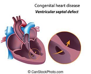 ventrikulär, eps8, septal, defekt