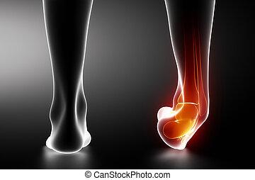 Verstauchte Knöchelpartie, schwarze Röntgenaufnahme.