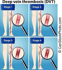 vier, stadien, thrombosis, vene, tief
