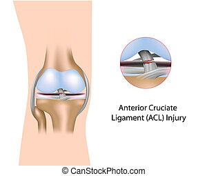 vorhergehend, verletzung, cruciate, ligament
