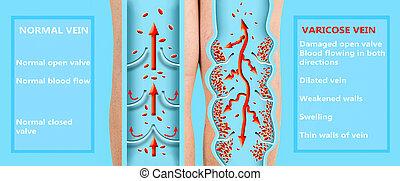 weibliche , legs., geäder, veins., struktur, älter, varicose, normal