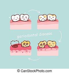 zahn, karikatur, krankheit, periodontal