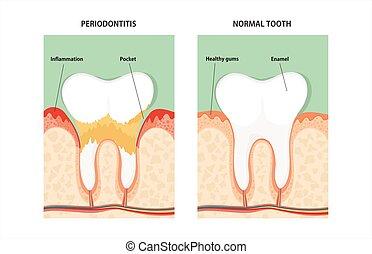 zahn, periodontal krankheit