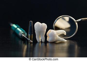 Zahn Titanimplantat.