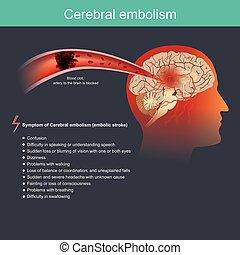 zerebral, embolie